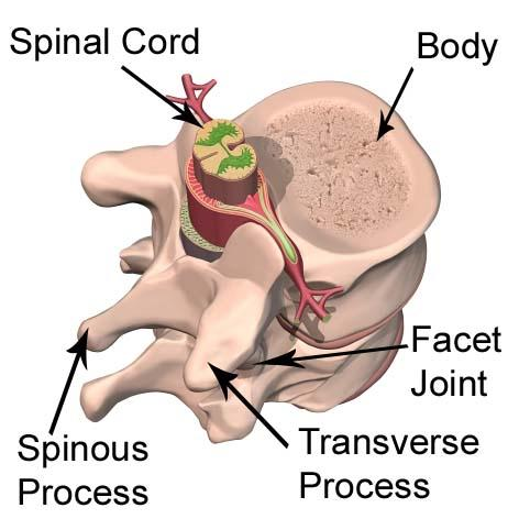 diagram of lily of the valley diagram of vertebral fracture
