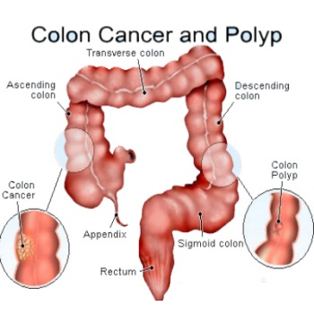 Colon Cancer BEAUFORT PERSONAL TRAINER: LOWER YOUR RISK FOR CANCER WITH REGULAR EXERCISE