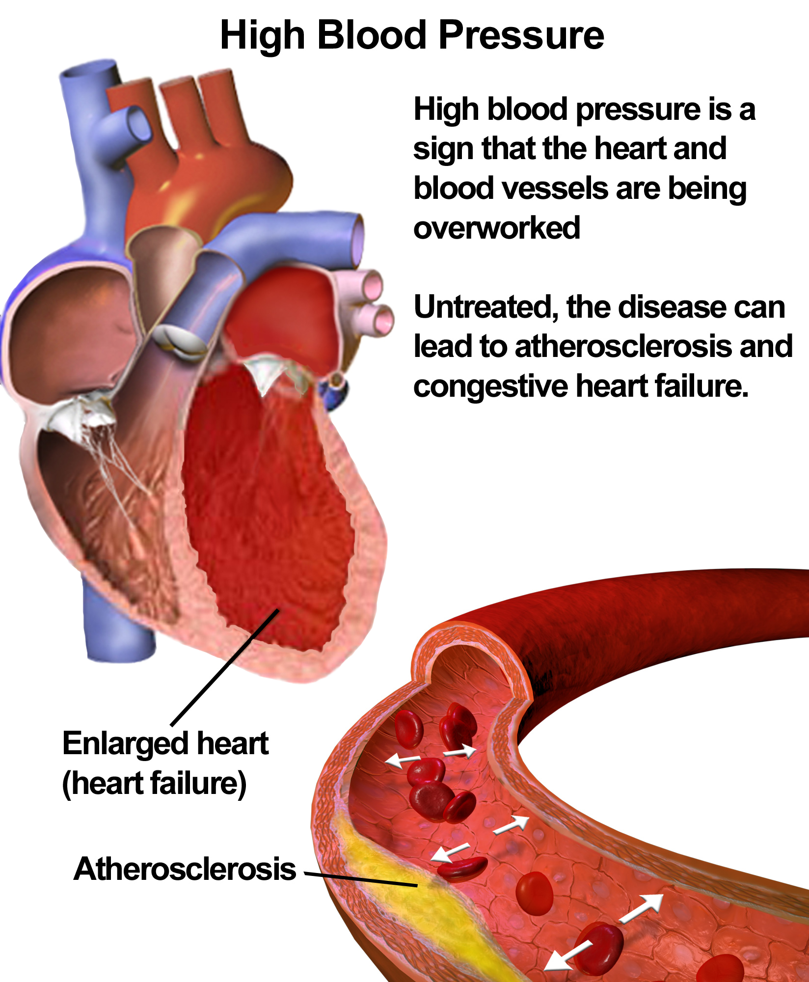 5 Ways Alcohol Affects Your Heart