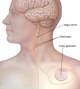 #1 Easiest Way To Improve Health (Toning Your Vagal Nerve)